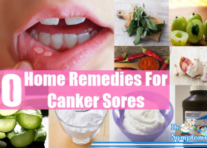 Natural Remedies For Canker Sores Cure