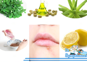 Natural Herpes Remedies