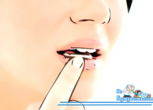 Start Treatment of a Cold Sore Outbreak Early