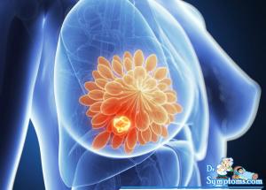 Breast cancer, Causes, Symptoms,Treatment, Precautions